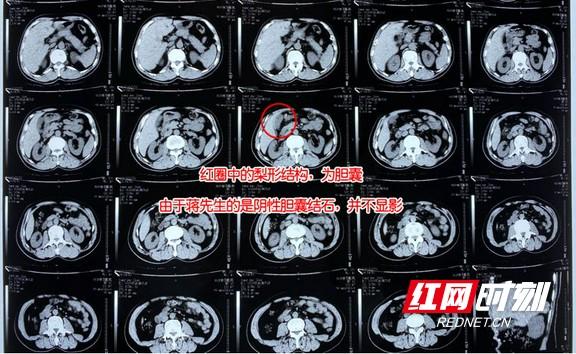 1608877433(1)_看图王.wm.jpg