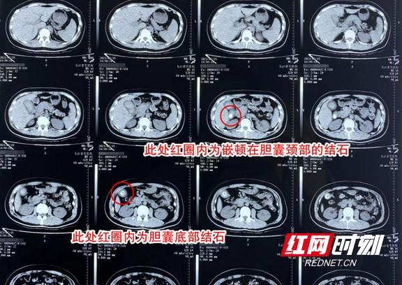 1614236039(1)_看图王.wm.jpg